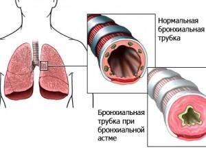 Антагонисты кальция при сочетании хронической обструктивной болезни легких и артериальной гипертензии