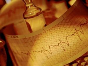 Амиодарон в международных рекомендациях по лечению аритмий