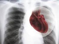 Ишемическая болезнь сердца оказалась больше «женским» заболеванием