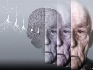 Болезнь Альцгеймера будут диагностировать на очень ранней стадии