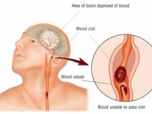 Лучшим методом диагностики инсульта названа МРТ