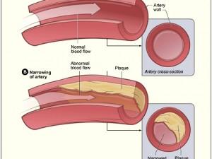 Антиоксиданты сохраняют здоровье артерий
