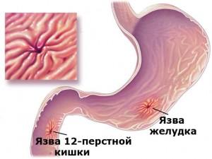Лечение острого язвенного кровотечения