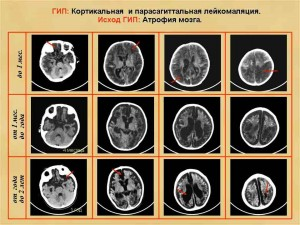 Витамин В замедляет атрофию мозга, утверждают ученые Оксфордского университета