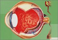 Причины развития ретинопатии