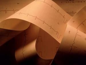 Заболеваемость сердечно-сосудистыми недугами в Северо-Западном округе РФ стабилизировалась, смертность сократилась на 10-12%