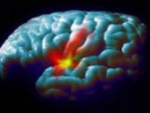 Ученые испытали новое вещество для лечения болезни Паркинсона