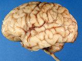У каких людей мозг стареет раньше