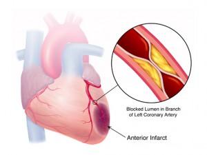 Аспирин уменьшает сердечный риск при гипертензивной болезни почек