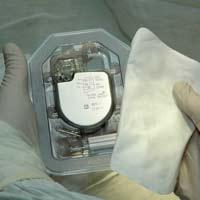 Новый медицинский прибор — ресинхронизатор сердечной деятельности — прошел испытания в Канаде