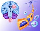 Терифлуномид успешно борется с рецидивами рассеянного склероза и хорошо переносится пациентами