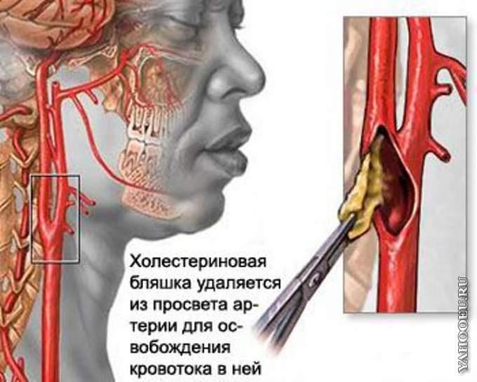 Хроническая ишемия головного мозга атеросклеротического и гипертонического генеза. Случай из практики