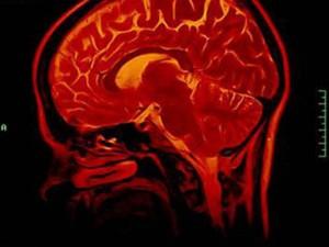 Неврологи идентифицировали область мозга, подавляющую инстинкт