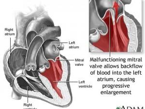 Диагностика пролапса митрального клапана