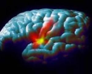 Новые данные о болезни Паркинсона
