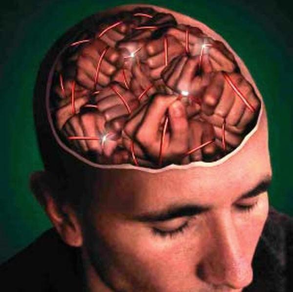 Глубокая стимуляция мозга эффективна при врожденной миоклонус-дистонии