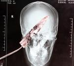Незамеченное врачами 10-сантиметровое лезвие в голове годами напоминало о себе лишь мигренью