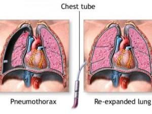 Пневмоторакс: причины и последствия заболевания