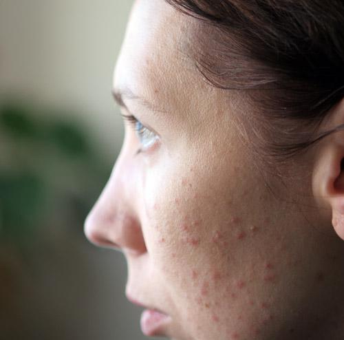 Формы аллергии на коже