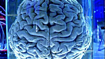 Вскоре могут появиться мозговые имплантаты