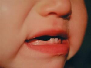 Как ухаживать за зубами детей?