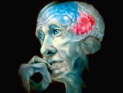 Найдены еще 4 гена, ответственные за болезнь Альцгеймера