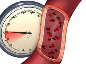 Комбинированная терапия артериальной гипертонии: эффективно и удобно