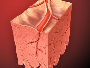 Сравнение антиагрегантного действия оригинального препарата клопидогрела Плавикса и его генерического аналога Лопирела у больных с острым коронарным синдромом, которым выполнялись первичные чрескожные вмешательства на коронарных артериях