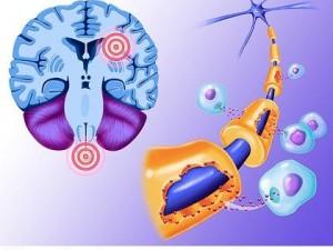 Вопросы диагностики и лечения рассеянного склероза