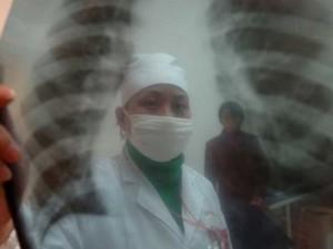 Ученые США сделали прорыв в лечении латентной формы туберкулеза