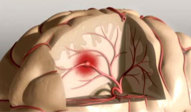 Инсульт — основные причины заболевания, виды инсульта, реабилитация.