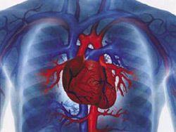 Любой тип ожирения одинаково приводит к болезням сердца
