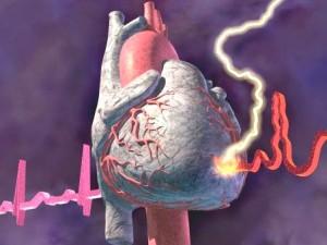 Ишемическая болезнь сердца: характер заболевания и причины возникновения
