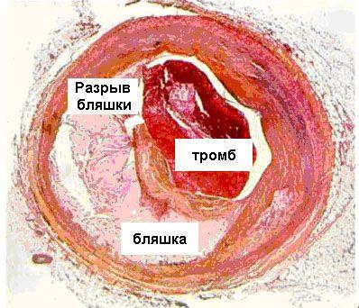 Особенности течения, лечения и прогноза острого коронарного синдрома без подъема сегмента ST у пациентов с высоким риском кровотечения и железодефицитной анемией