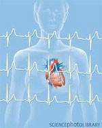 Уровень гормонов в период менопаузы может предсказать сердечный приступ