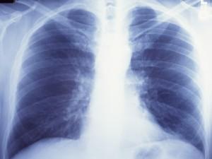 Пульмонология — наука о заболеваниях дыхательных органов