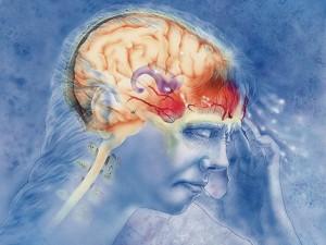 НПВП и триптаны при мигрени: раздельно или вместе?