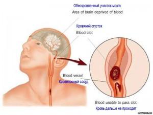 Ацетилсалициловая кислота в лечении и профилактике ишемических нарушений мозгового кровообращения