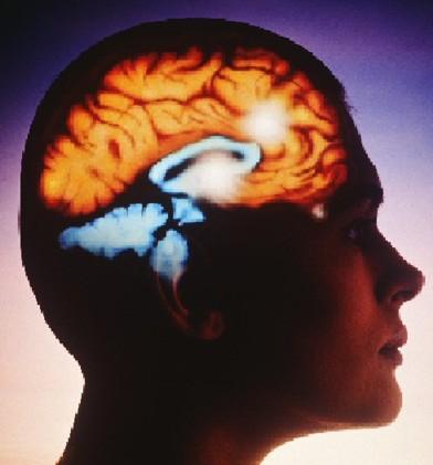 Современные представления о терапии тревожно–депрессивных расстройств при хронической ишемии головного мозга