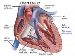 Сердечная недостаточность: виды, симптомы и признаки