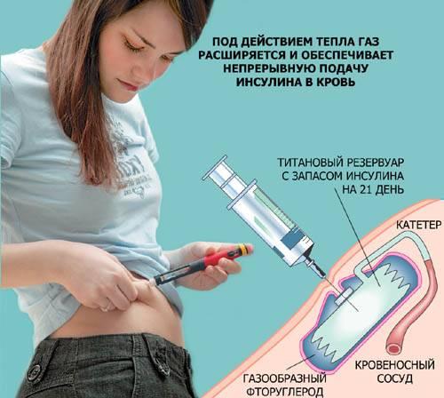 Диабетическая полинейропатия: возможности патогенетического воздействия