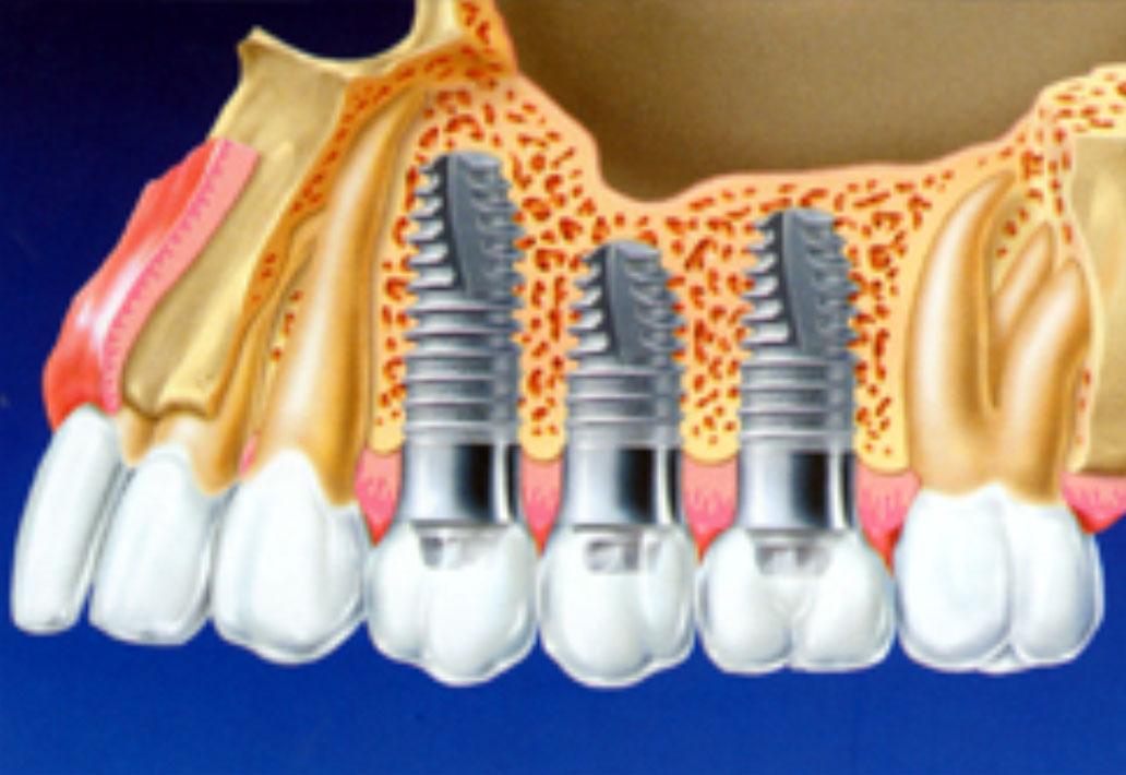 Лечение зубов точно без боли — имплантация и протезирование