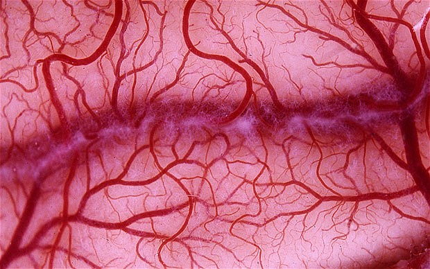 Как предотвратить болезни кровеносных сосудов?