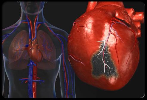 Новый препарат поможет продлить жизнь после инфаркта