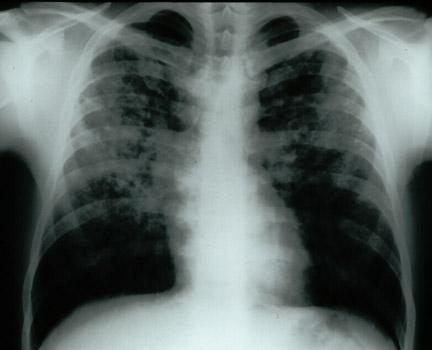Болезни легких — бич нашего времени, но их можно предотвратить