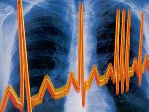 Точечный удар током для борьбы с сердечной аритмией