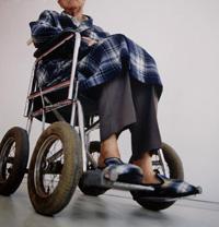 Причина развития бокового амиотрофического склероза, вызывающего паралич, найдена