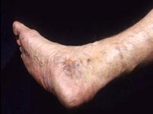 Установлено: лазер не лучше операции при лечении варикоза