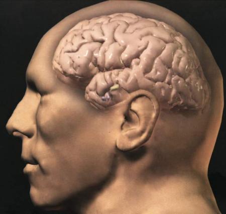 Диабет тормозит работу мозга