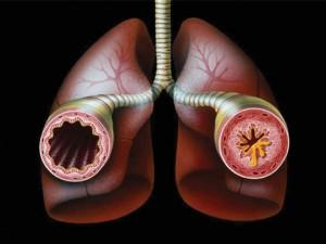 Английские ученые обнаружили новый метод лечения «поздней» астмы